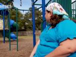 Obèses : perte de poids extrême